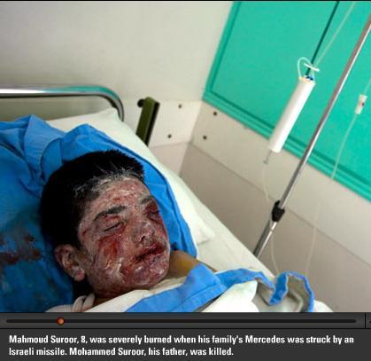 Boy burned by white-phosphorus in 2007 Israeli Gaza massacre {Artintifada}