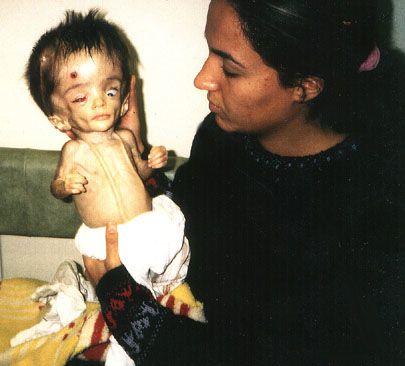 Large feature, abnormal children in India {Instablog}