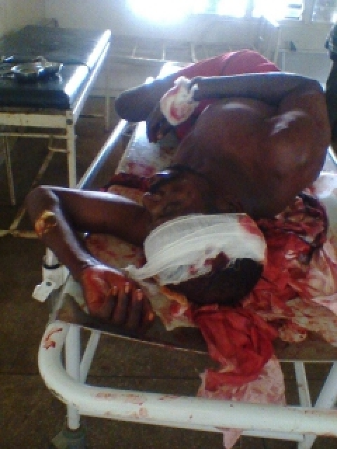 Survivor of today attack in Southern Kaduna, photo by Concerned Realists of Southern Kaduna_0