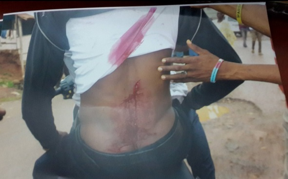 PDP-Thugs-Unleash-violence-on-innocent-victims-and-APC-supporters-in-Ile-Ife