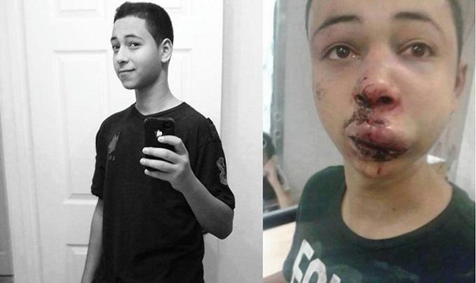 tariq-khdeir beaten
