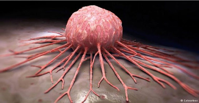 MEDICAL-BREAKTHROUGH-ANY-TYPE-OF-CANCER-CAN-BE-CURED-IN-JUST-2-6-WEEKS