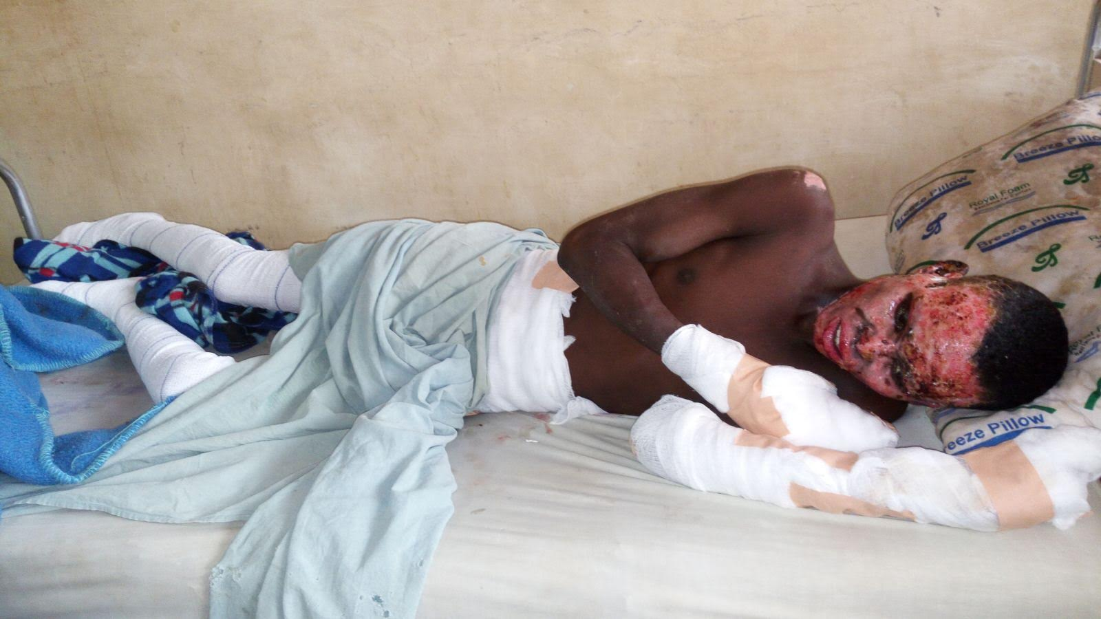 Burned victims of Zaria military pogrom c/o Dr Brimah